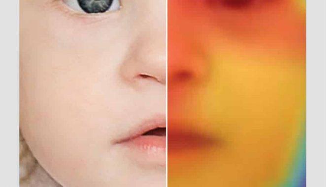 Genetik: App ersetzt Blickdiagnose