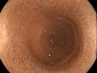 """""""Dünndarm"""" von Dr.HH.Krause – eigenes Werk. CC BY-SA 3.0 via Commons."""