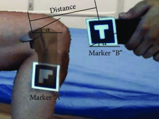 Augmented Reality for Assistance of Total Knee Replacement, Daniel & Ramos 2016